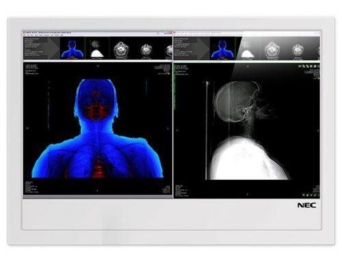 NECRA Surgery Plus, il futuro è adesso