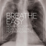 Breathe easy: how radiology helps to find and fight lung diseases