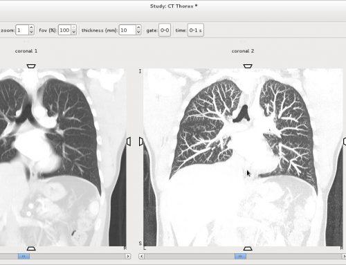 AMIDE: un software gratuito per l'analisi di immagini mediche