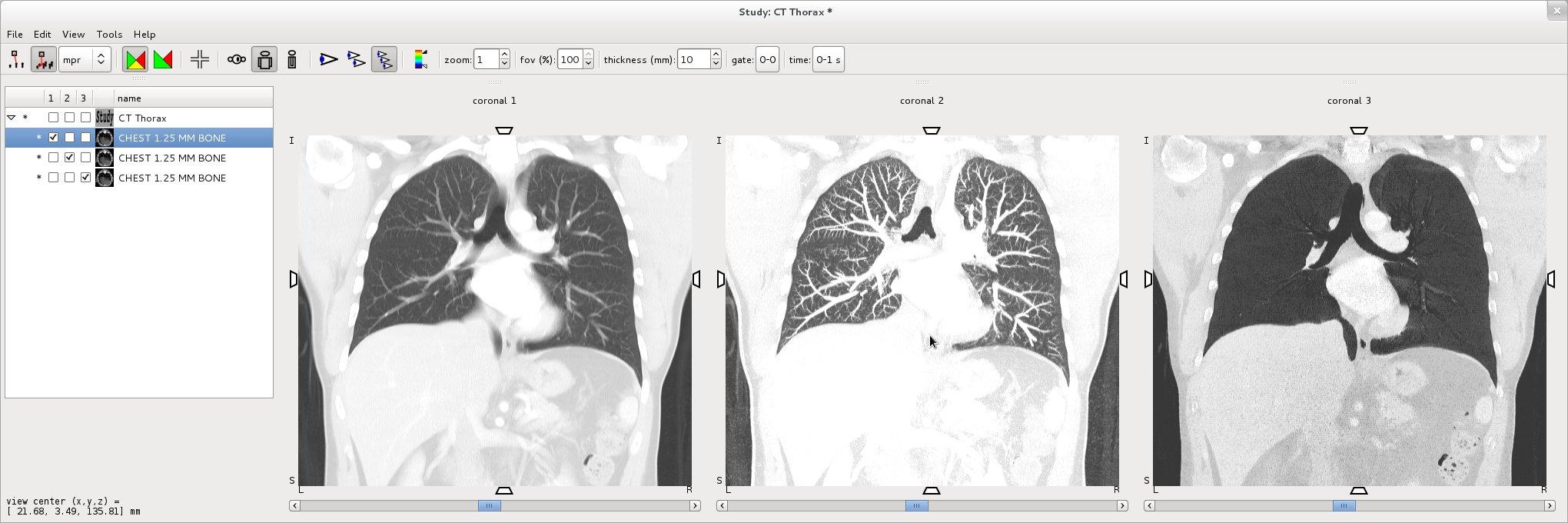 Amide, Medical Image Data Examiner