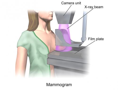 La mammografia digitale riduce richiami e biopsie