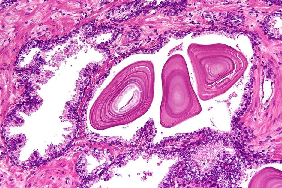 Tessuto prostatico benigno
