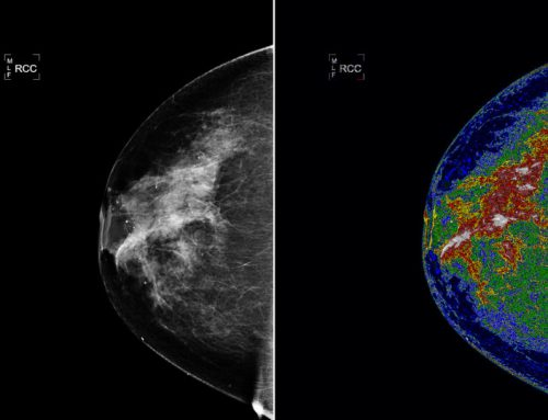 Mammografia, seminario: revisione radiologica dei carcinomi di intervallo