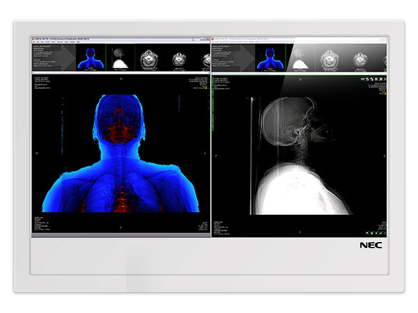 Display LCD 46'' medicale NEC MD461OR
