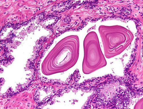 Ecografia, prostata: una nuova metodica può sostituire la biopsia